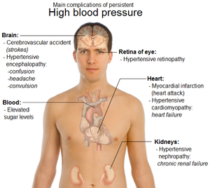tecken på högt blodtryck