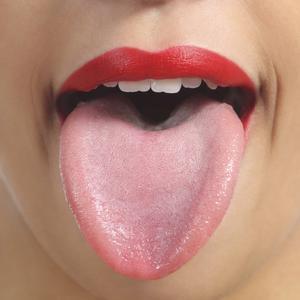 få bort vit beläggning på tungan