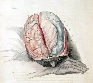 syrebrist i hjärnan symtom