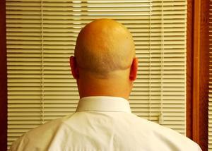 Hur till få den blanka bald utseendet för män