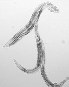 Nematoder parasiter hos människor