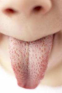 kramp i tungan