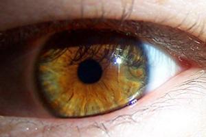 herpes i ögat symptom