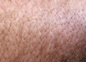 Hud-helande örter