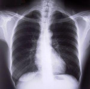 Tecken & symtom på ett diafragmabråck