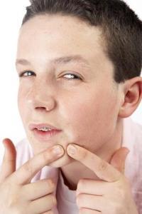 Hur tar man bort finnar & utslag i ansiktet