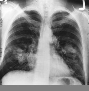 Behandling av steg IV lungcancer