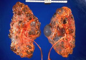 Vilka är behandlingarna för njur cystor?