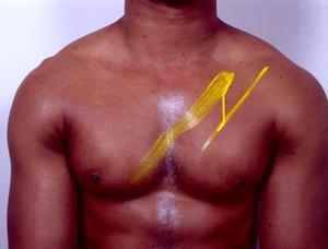 Snabbt sätt att kasta fett runt bröstkorgen