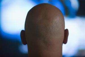 Hur du använder äggula för att behandla håravfall