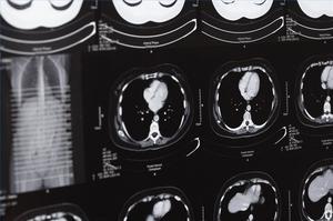 Hur man identifierar symtom på hjärnskakning hos barn