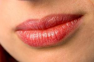 Diskmedel och vaselin behandling för kantiga keilit