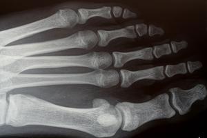 Vad betyder mörka fläckar i ett ben täthet Test?