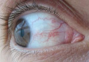 herpes ögon symtom