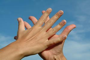 Hand och spik problem