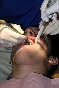Hur man fixar ruttna tänder