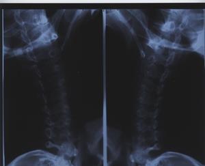 Nackdelarna med radiografi