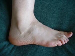 Den bästa behandlingen för perifer neuropati i fötterna