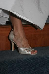 Vanliga fotproblem hos kvinnor