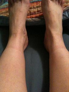 ytlig blodpropp i benet symptom