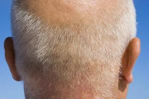 svamp i hårbotten vuxna