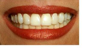 Hur rengör tandläkare tänder?