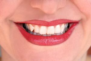 Hur man fixar en flisas tand utan att gå till tandläkaren