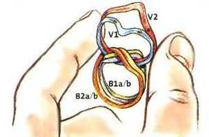 Hur man löser 6 Band pussel ringar