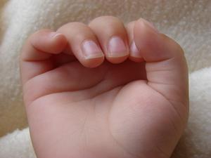 åsar på naglarna