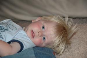 Vad är tecken & symtom av lupus i ett litet barn?
