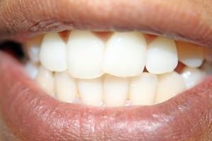 Varför tänder gulnar med tiden?