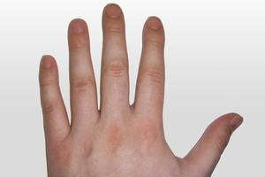 Varför är mina naglar så sprött?