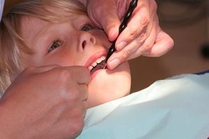 Vad är den yngsta åldern för Dental hängslen?