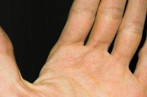 Hur man ska tolka domningar i vänster arm