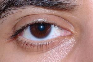 hudcancer i ögat