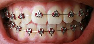 Tänder med tandställning: Livsmedel för att undvika