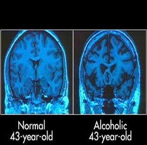 Gehirnzellen Alkohol