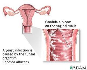 Naturliga botemedel för kvinnliga klåda
