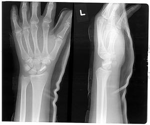 Vad är en trefas skelettscintigrafi?