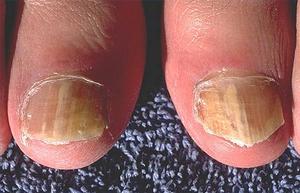 Botemedel för en tånagel infektion