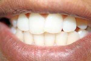 Hur nära luckor i tänder
