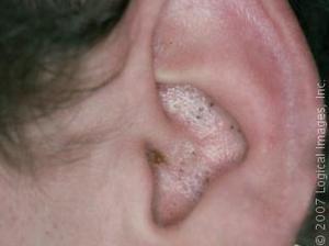 få bort pormaskar i örat