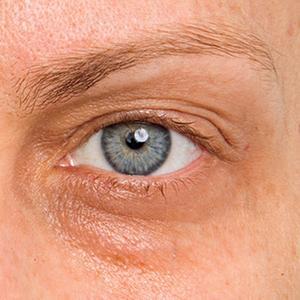 herpes runt ögat
