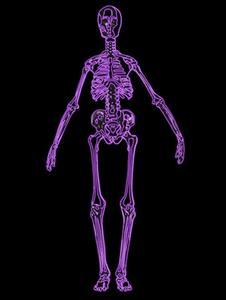 Vad vita fläckar på en skelettscintigrafi framgår?