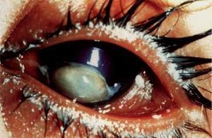 Hur kan man förhindra nattblindhet?