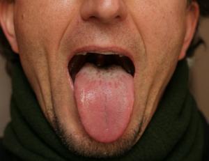 små vita prickar på tungan