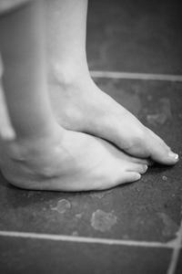 Hur kan jag rätta till min platta fötter?