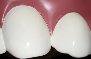 Hur du använder opalescensen pf 20 tandblekning system