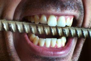 varför smakar det metall i munnen